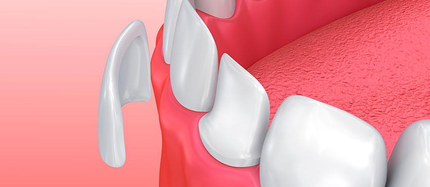 что такое виниры и люминиры в стоматологии