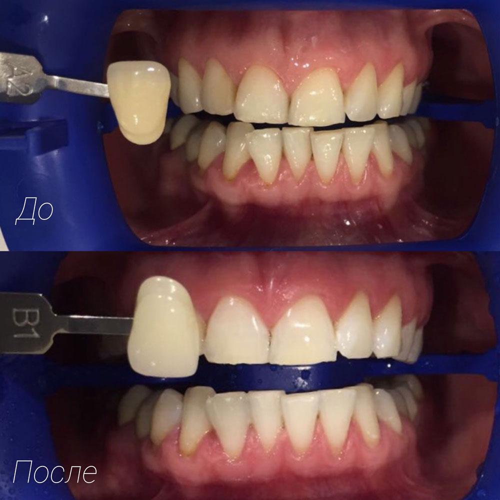отбеливание зубов zoom видео инструкция